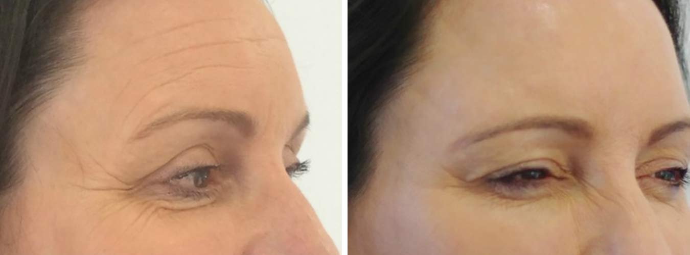 Crows Feet Before/After