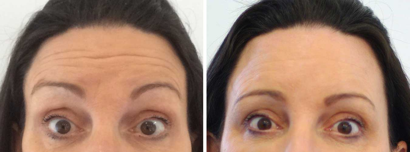 Forehead Lines Before/After