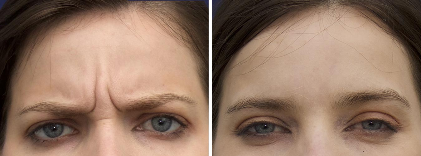 Frown Lines Before/After