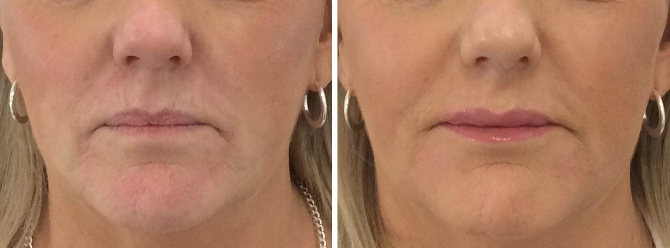 Mature Lip Hydration Before/After