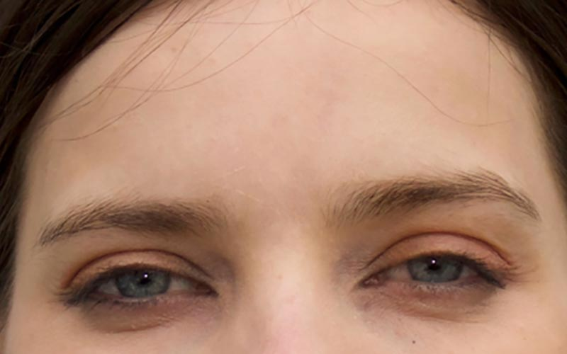 Frown Lines After Treatment